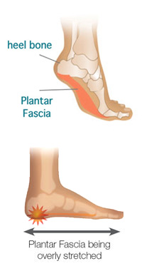 Heel pain-Plantar fascia being stretched