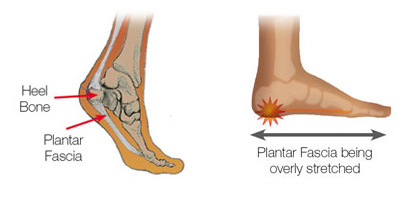 9a5866c851 Plantar Fasciitis Treatment – Fast Relief with Orthotics & Exercises